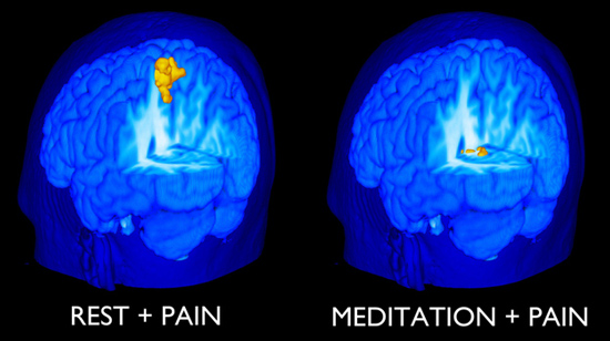 meditation reduces pain